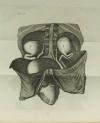[Médecine] DESAULT - Maladies des Voies Urinaires - 1813 - Photo 1 - livre rare