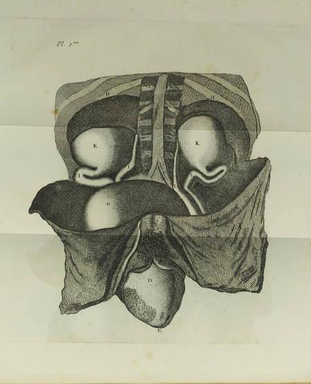 [Médecine] DESAULT - Maladies des Voies Urinaires - 1813 - Photo 1, livre ancien du XIXe siècle