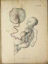 TIEDEMANN - Tabulae arteriarum - 1822 - In plano - Planches - Lithographies - Photo 17, livre rare du XIXe siècle