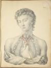TIEDEMANN - Tabulae arteriarum - 1822 - In plano - Planches - Lithographies - Photo 2, livre rare du XIXe siècle